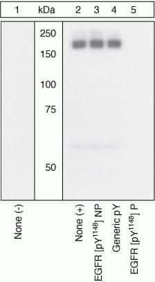 Phospho-EGFR (Tyr1148) Antibody in Western Blot (WB)