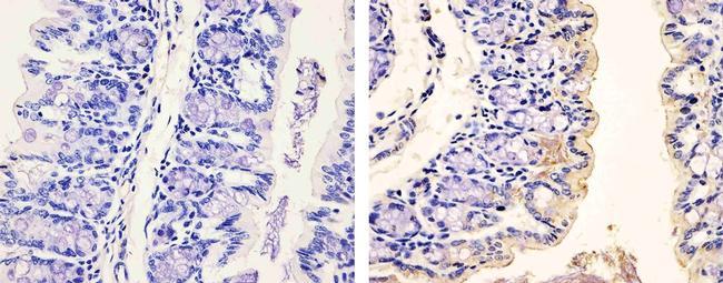 Phospho-PDGFRA (Tyr754) Antibody in Immunohistochemistry (Paraffin) (IHC (P))
