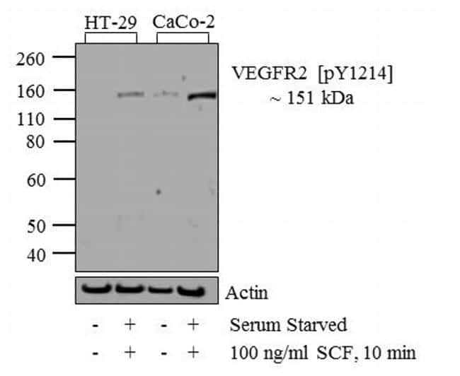 Phospho-VEGF Receptor 2 (Tyr1214) Antibody in Western Blot (WB)