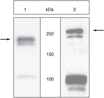 VEGF Receptor 2 Antibody in Western Blot (WB)
