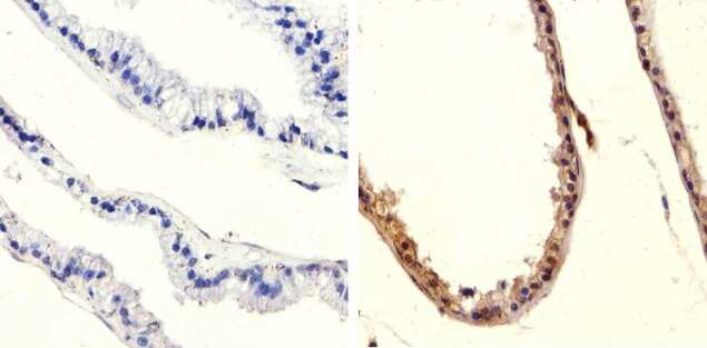 Phospho-PTEN (Ser370) Antibody in Immunohistochemistry (Paraffin) (IHC (P))