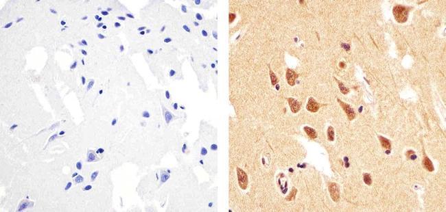 Phospho-PTEN (Thr383) Antibody in Immunohistochemistry (Paraffin) (IHC (P))
