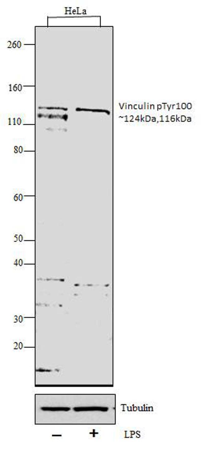 Phospho-Vinculin (Tyr100) Antibody in Western Blot (WB)