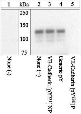 Phospho-VE-cadherin (Tyr731) Antibody in Western Blot (WB)