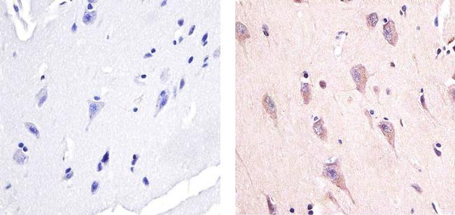 Phospho-AMPK alpha-1,2 (Thr183, Thr172) Antibody in Immunohistochemistry (Paraffin) (IHC (P))