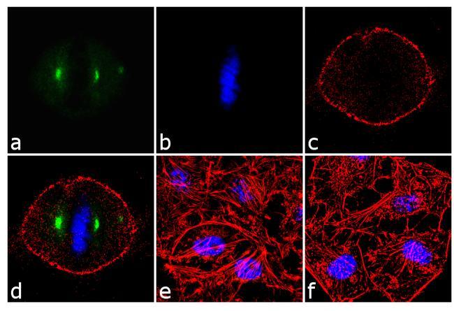 Phospho-Aurora A (Thr288) Antibody in Immunofluorescence (IF)