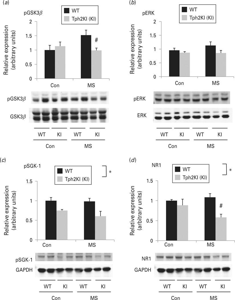 Phospho-SGK1 (Thr256) Antibody