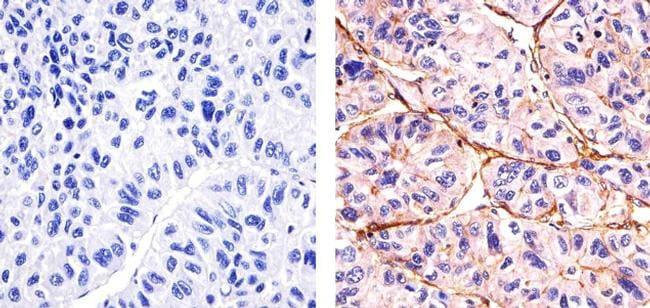 Phospho-SGK1 (Thr256) Antibody in Immunohistochemistry (Paraffin) (IHC (P))