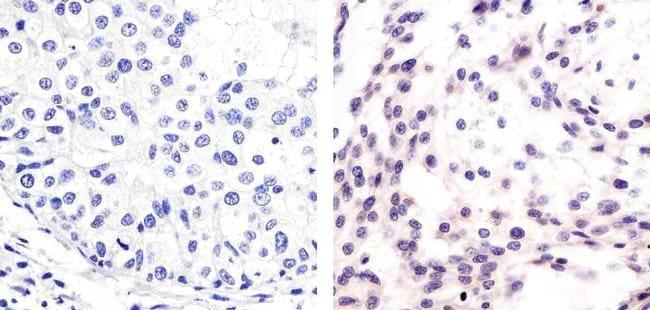Phospho-MDM2 (Ser166) Antibody in Immunohistochemistry (Paraffin) (IHC (P))