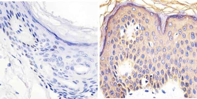 Phospho-RAC1/CDC42 (Ser71) Antibody in Immunohistochemistry (Paraffin) (IHC (P))