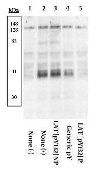 Phospho-LAT (Tyr132) Antibody in Western Blot (WB)