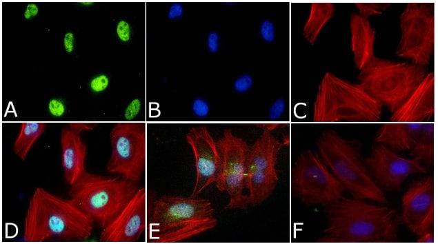 Phospho-SMAD2 (Ser465, Ser467) Antibody in Cell Treatment
