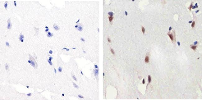 Phospho-SMAD2 (Ser465, Ser467) Antibody in Immunohistochemistry (Paraffin) (IHC (P))
