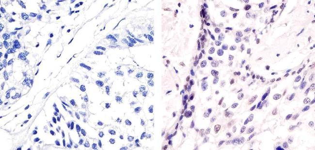 Phospho-ATF2 (Thr71) Antibody in Immunohistochemistry (Paraffin) (IHC (P))