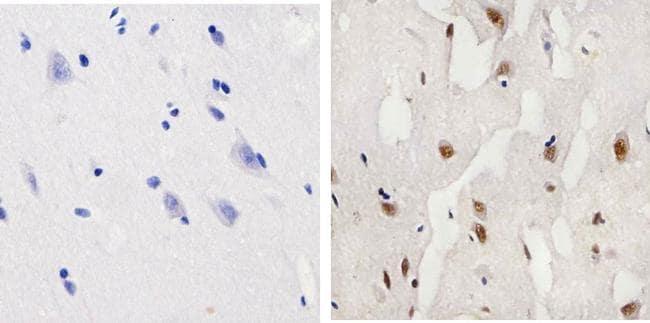 Phospho-CREB (Ser133) Antibody in Immunohistochemistry (Paraffin) (IHC (P))