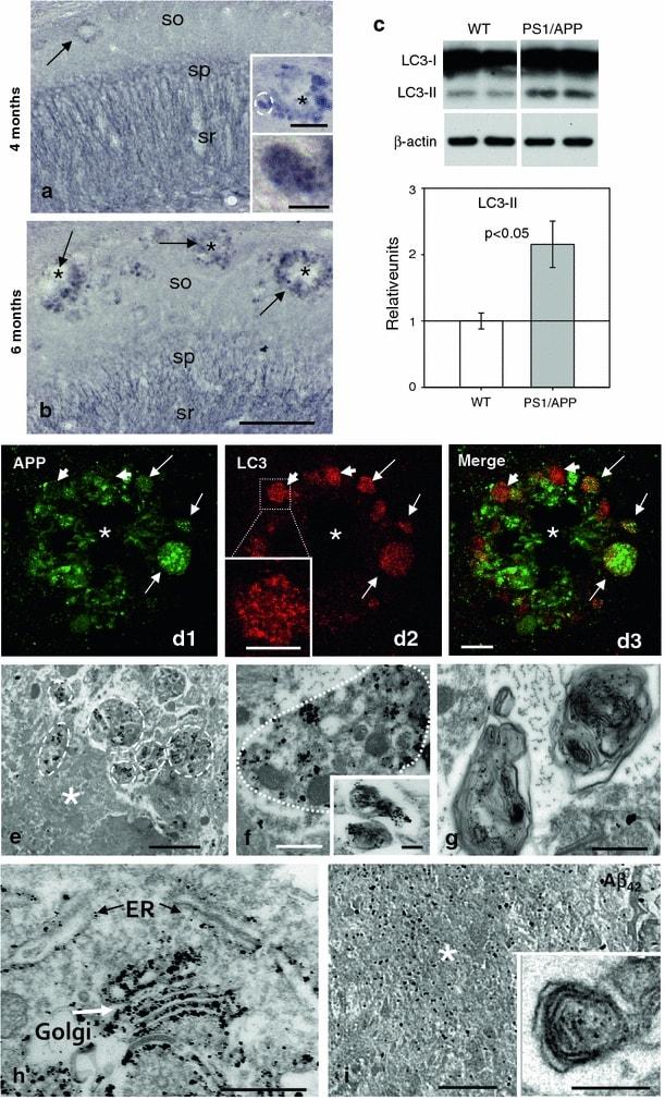 beta Amyloid (1-42) Antibody in Western Blot, Immunohistochemistry, Immunomicroscopy (WB, IHC, IM)