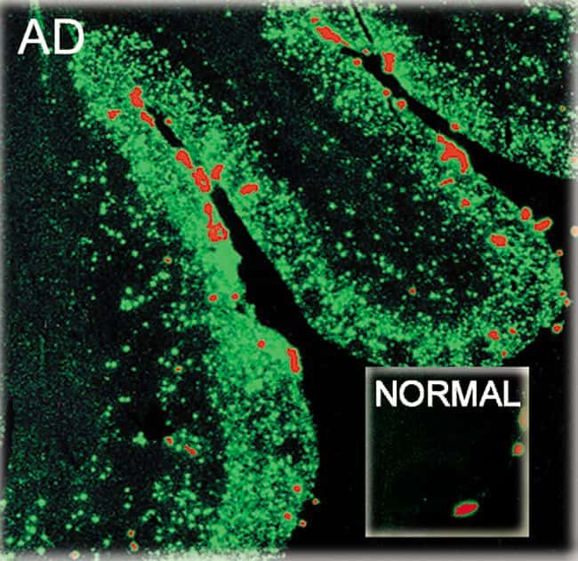 beta Amyloid (1-40) Antibody in Immunofluorescence (IF)