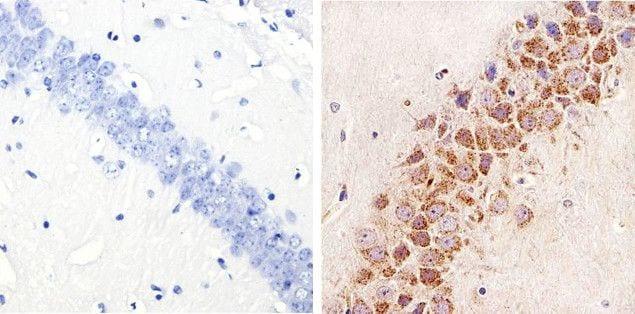Phospho-STAT3 (Ser727) Antibody in Immunohistochemistry (Paraffin) (IHC (P))