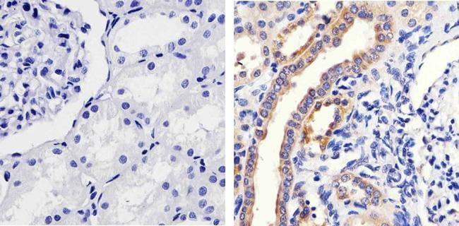 Phospho-MEK1 (Ser298) Antibody in Immunohistochemistry (Paraffin) (IHC (P))