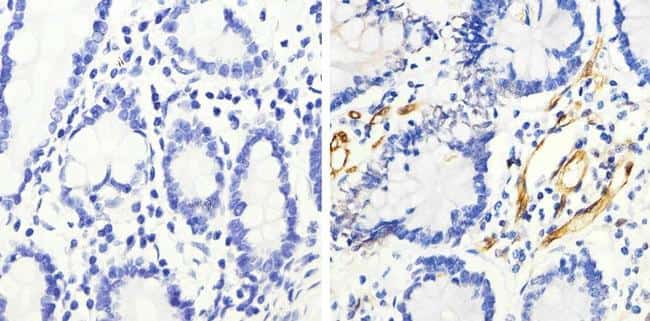Phospho-HSP27 (Ser82) Antibody in Immunohistochemistry (Paraffin) (IHC (P))