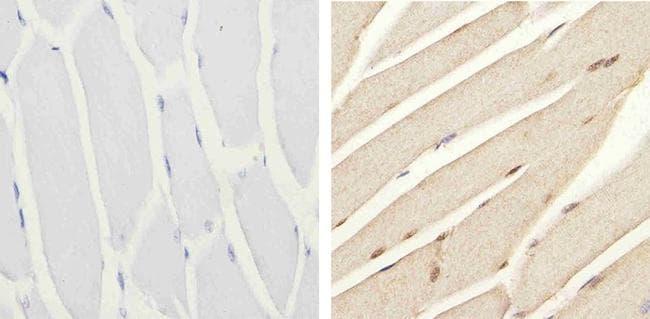 Phospho-IRS1 (Ser616) Antibody in Immunohistochemistry (Paraffin) (IHC (P))