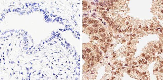 Phospho-AKT1 (Thr308) Antibody in Immunohistochemistry (Paraffin) (IHC (P))
