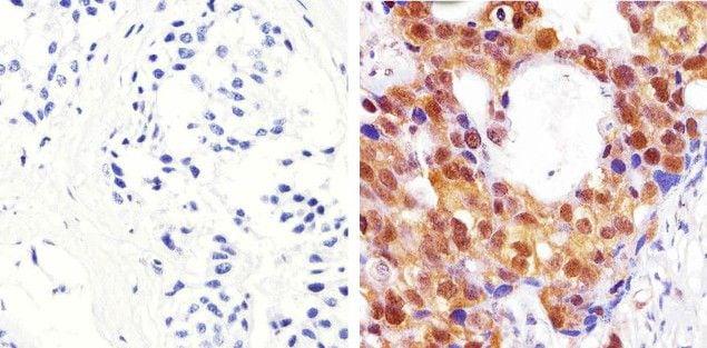 AKT Pan Antibody in Immunohistochemistry (Paraffin) (IHC (P))