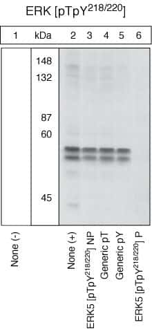 Phospho-ERK5 (Thr218, Tyr220) Antibody in Western Blot (WB)