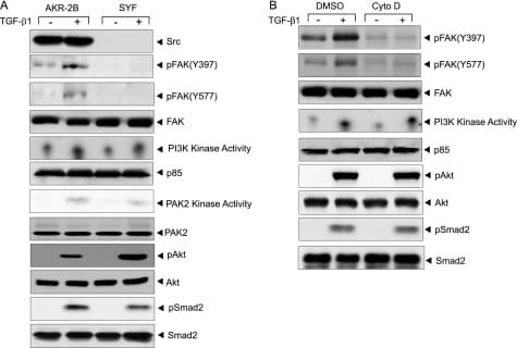 Phospho-FAK (Tyr577) Antibody