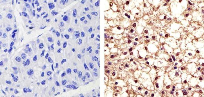 Phospho-PYK2 (Tyr402) Antibody in Immunohistochemistry (Paraffin) (IHC (P))