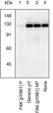 Phospho-FAK (Tyr861) Antibody in Western Blot (WB)