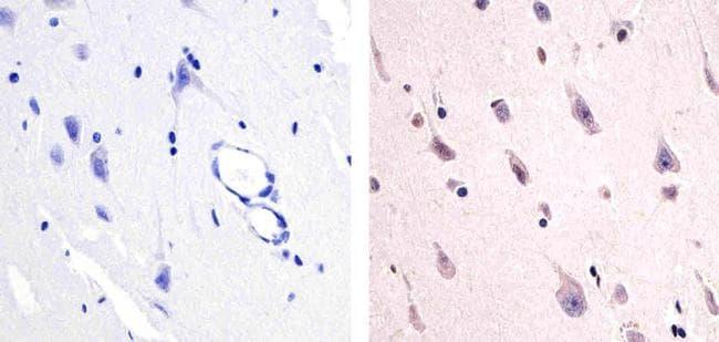 Phospho-PYK2 (Tyr579) Antibody in Immunohistochemistry (Paraffin) (IHC (P))