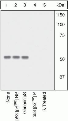 Phospho-p53 (Ser392) Antibody in Western Blot (WB)