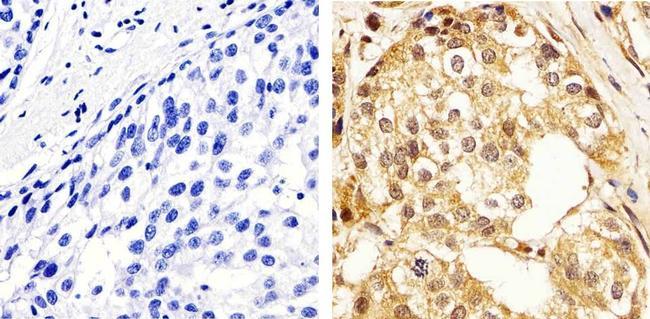 ERK1/ERK2 Antibody in Immunohistochemistry (Paraffin) (IHC (P))