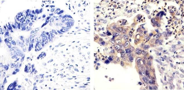 SRC Antibody in Immunohistochemistry (Paraffin) (IHC (P))