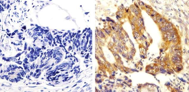 Phospho-SRC (Tyr529) Antibody in Immunohistochemistry (Paraffin) (IHC (P))