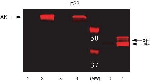 Phospho-ERK1/ERK2 (Thr185, Tyr187) Antibody in Western Blot (WB)