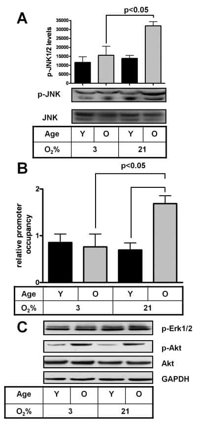 Phospho-JNK1/JNK2 (Thr183, Tyr185) Antibody