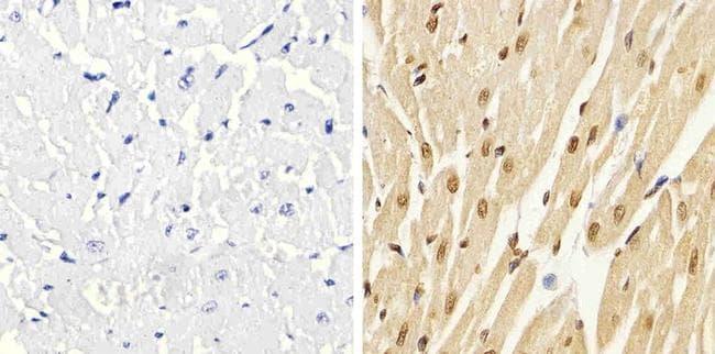 Phospho-p38 MAPK alpha (Thr180, Tyr182) Antibody in Immunohistochemistry (Paraffin) (IHC (P))