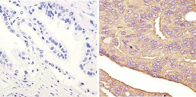 JNK1 Antibody in Immunohistochemistry (Paraffin) (IHC (P))