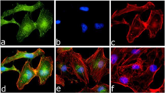 Phospho-IKK alpha (Ser176, Ser180) Antibody in Immunofluorescence (IF)