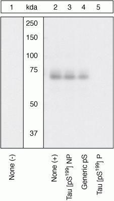Phospho-Tau (Ser199) Antibody in Western Blot (WB)