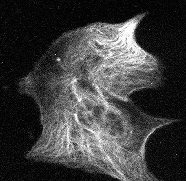 Phospho-Tau (Ser199) Antibody in Immunofluorescence (IF)