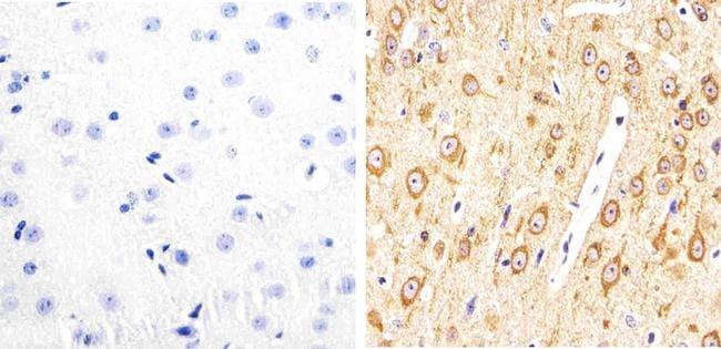 Phospho-Tau (Thr231) Antibody in Immunohistochemistry (Paraffin) (IHC (P))