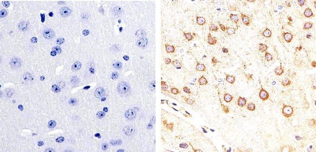 Phospho-Tau (Ser404) Antibody in Immunohistochemistry (Paraffin) (IHC (P))