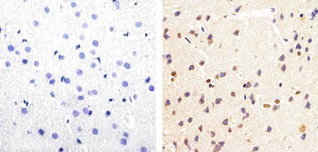 Phospho-Tau (Ser199, Ser202) Antibody in Immunohistochemistry (Paraffin) (IHC (P))