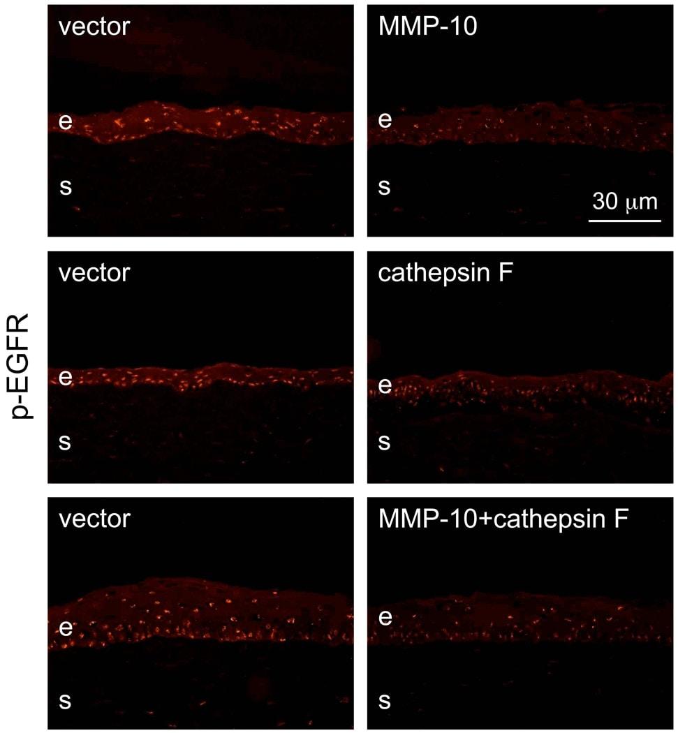 Phospho-EGFR (Tyr845) Antibody