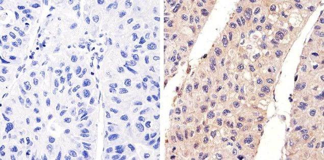Phospho-EGFR (Tyr1173) Antibody in Immunohistochemistry (Paraffin) (IHC (P))