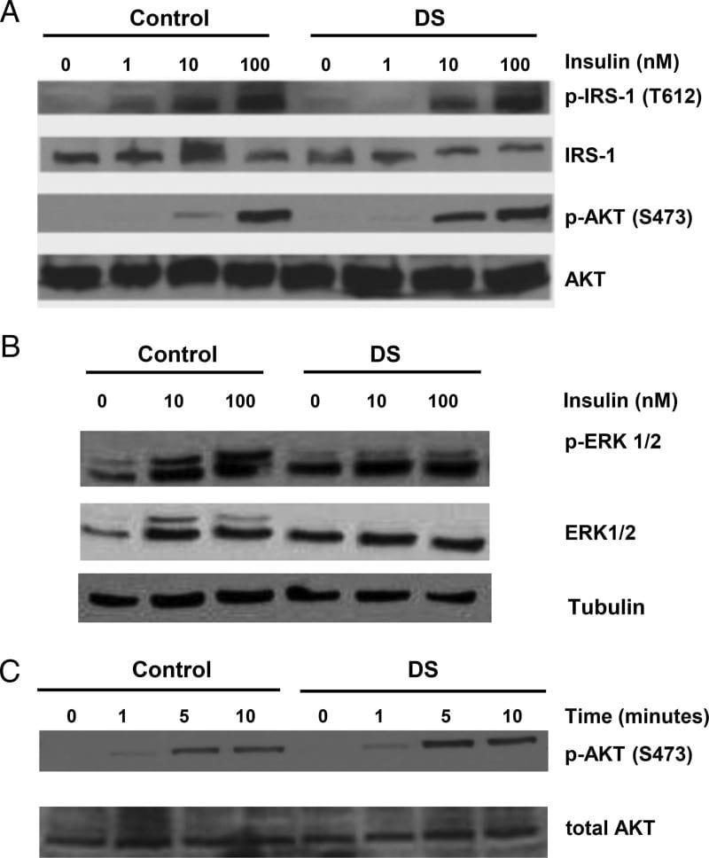 Phospho-IRS1 (Tyr612) Antibody