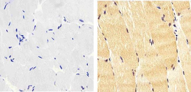 Phospho-IRS1 (Tyr612) Antibody in Immunohistochemistry (Paraffin) (IHC (P))